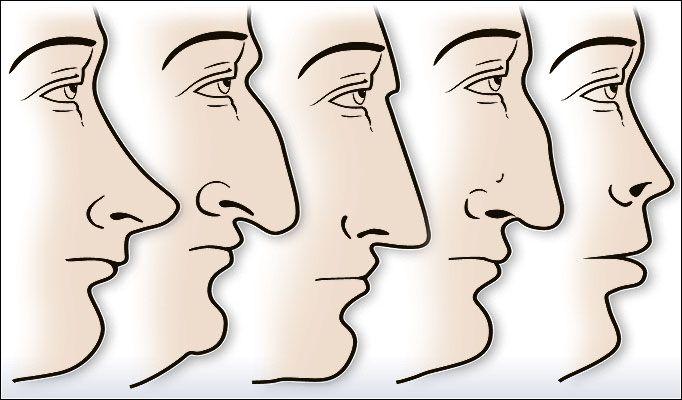 Đúng hay sai quan niệm hình dáng mũi quyết định số phận?