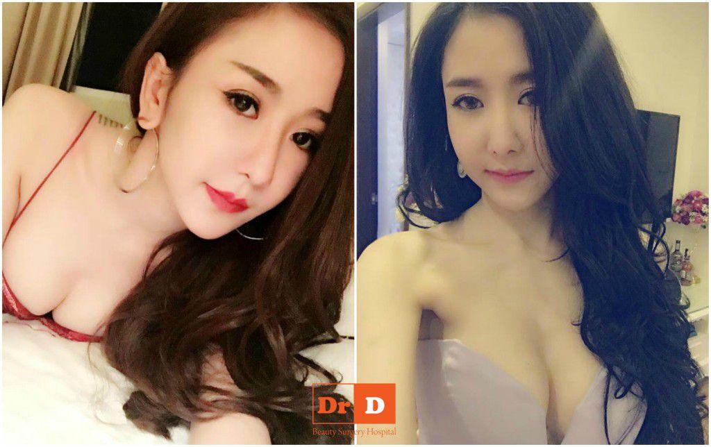 ngam-vong-1-nong-bong-van-nguoi-me-cua-hotgirl-chu-hang Chu Hằng và những câu chuyện làm đẹp gây sốt