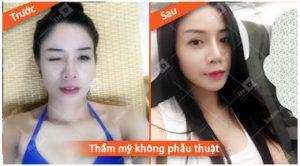 tham-my-khong-phau-thuat