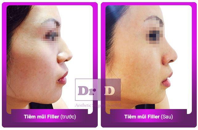 tiem-mui-filler-1 Bác sĩ Điền trả lời phỏng vấn báo Người đưa tin về Tiêm filler an toàn