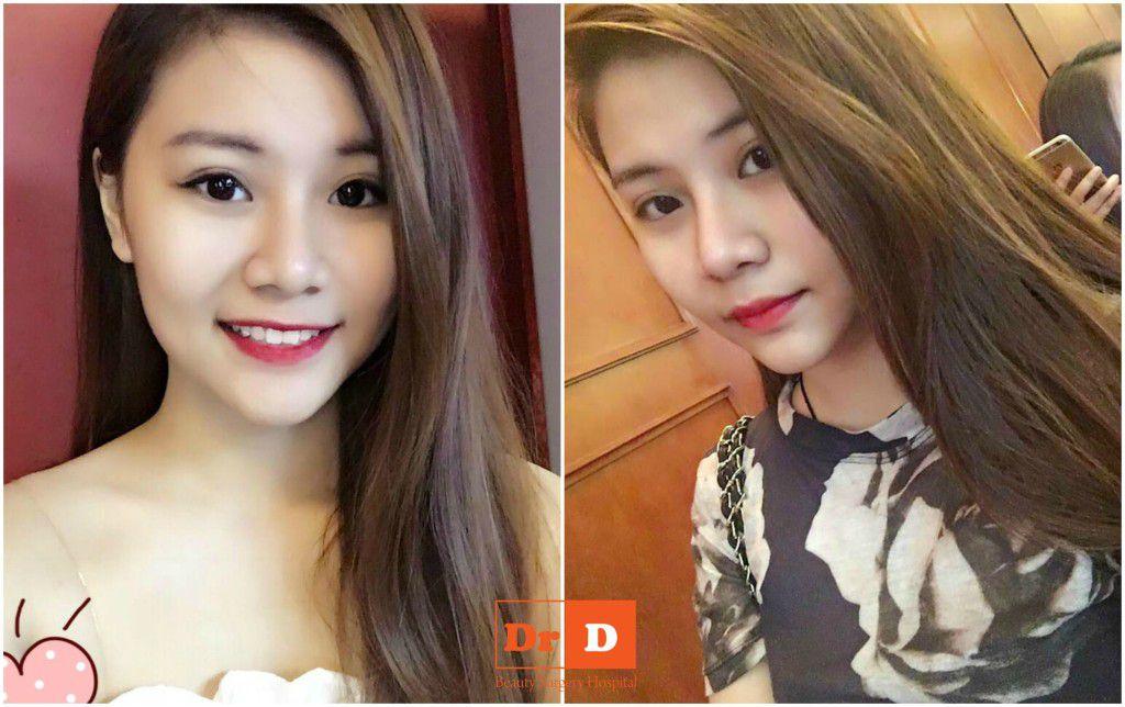 nguyen-thu-hang-xinh-dep-nhu-hotgirl-sau-nang-mui-don-cam Nguyễn Thu Hằng – Xinh đẹp như hotgirl sau nâng mũi, độn cằm
