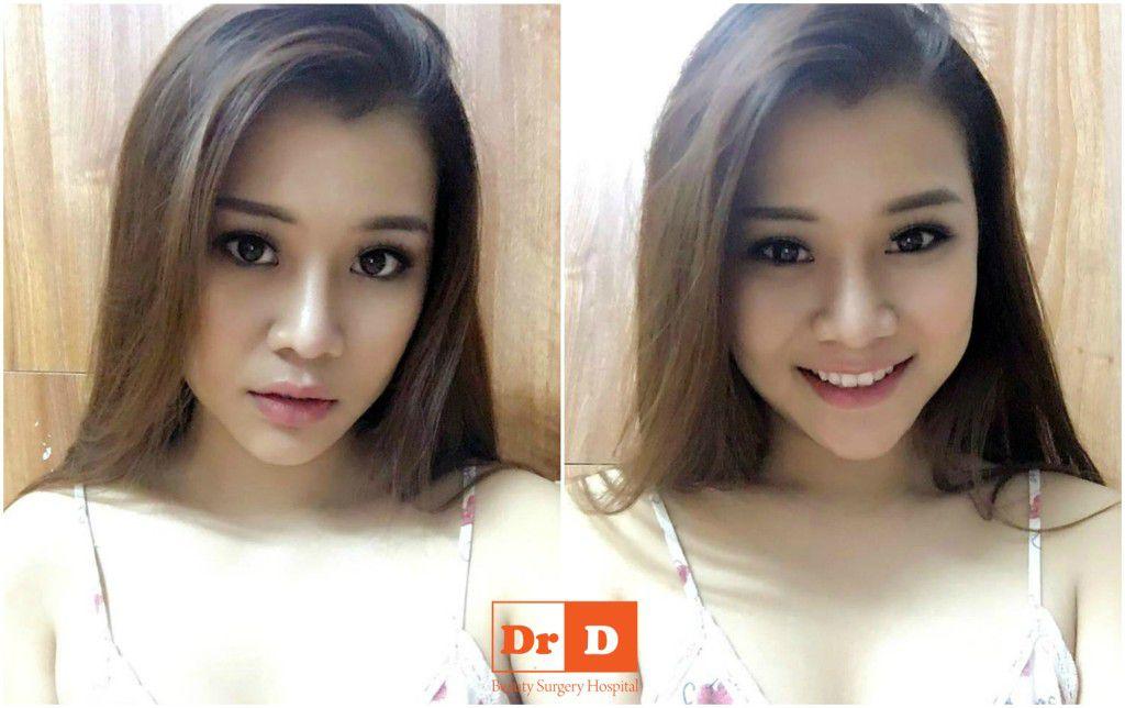 nguyen-thu-hang-xinh-dep-nhu-hotgirl-sau-nang-mui-don-cam (3) Nguyễn Thu Hằng – Xinh đẹp như hotgirl sau nâng mũi, độn cằm