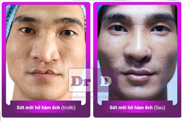 Choáng ngợp trước sự thay đổi kinh ngạc sau phẫu thuật thẩm mỹ Choáng ngợp trước sự thay đổi kinh ngạc sau PTTM