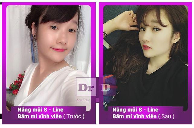 Phái nữ Việt thay đổi diện mạo nhờ nâng mũi, bấm mí Phái nữ Việt thay đổi diện mạo nhờ nâng mũi, bấm mí
