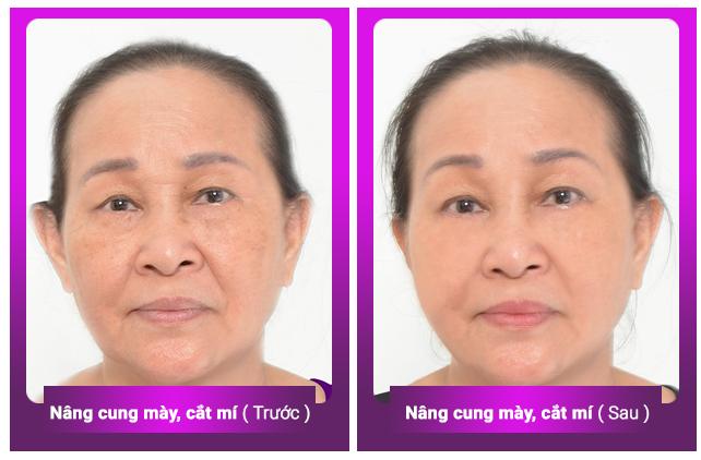 dep-cho-nang-tre-sang-cho-me-uu-dai-lon-cho-83