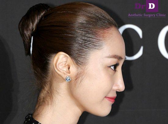 Mũi Sline đẹp hoàn hảo trong ảnh chụp góc mặt nghiêng của sao Hàn