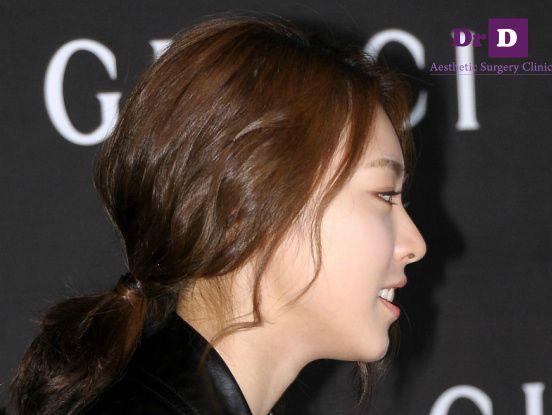 Mũi Sline đẹp hoàn hảo trong ảnh chụp góc mặt nghiêng của sao Hàn Mũi Sline đẹp hoàn hảo trong ảnh chụp góc mặt nghiêng của sao Hàn