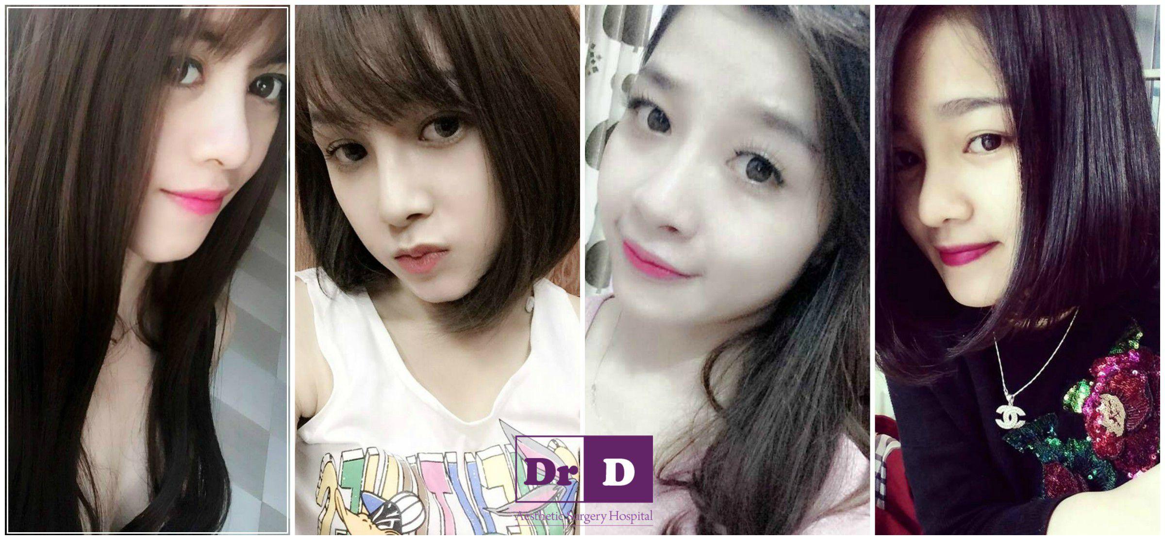 ban-da-tung-nang-mui-tai-benh-vien-dong-chua(2)3 Bạn đã từng nâng mũi tại bệnh viện Đông Đô chưa?