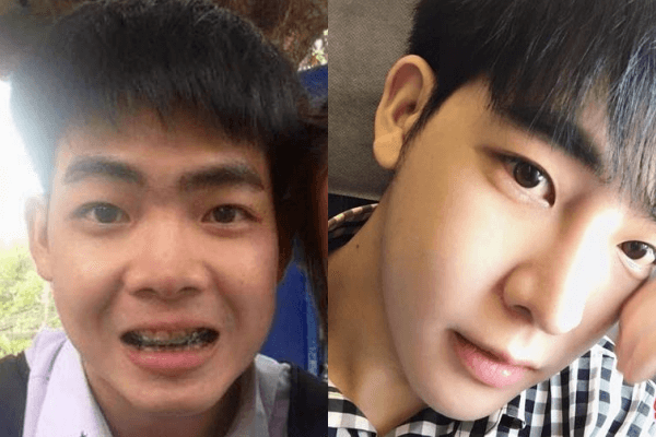 Trai xấu Thái Lan lột xác thành nam thần nhờ PTTM