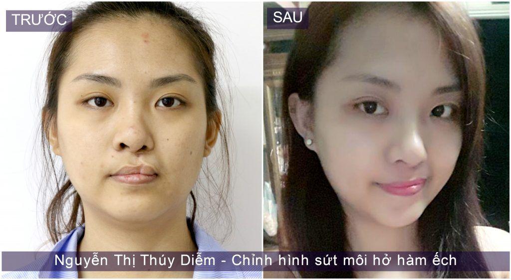 """Thuy-diem-1 Bác sĩ Điền: """"Làm từ thiện xuất phát nơi tâm mình"""""""