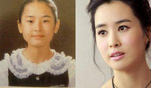 """Cac-sao-nu-xu-so-Kim-Chi-hoa-thien-nga-sau-khi-cat-mi-1 Các Sao nữ xứ sở Kim Chi """"hóa thiên nga"""" sau khi cắt mí"""