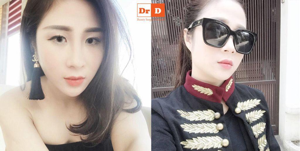 ai-noi-nang-mui-xong-khong-duoc-deo-kinh (2) Ai nói nâng mũi xong không được đeo kính?