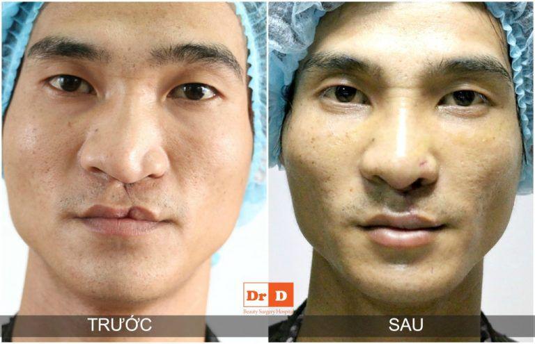 phau-thuat-nhan-dao-cho-cac-truong-hop-sut-moi-ho-ham-ech Phẫu thuật nhân đạo cho các trường hợp sứt môi hở hàm ếch