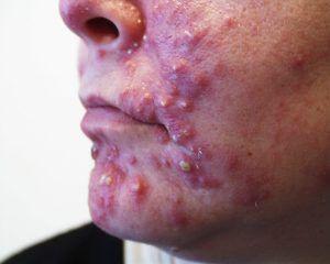 anh-1 Bạn đã biết phân biệt các loại mụn trên da chưa vậy?