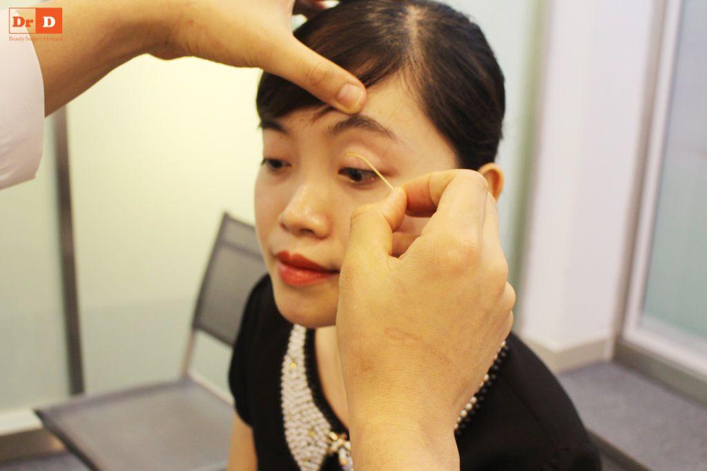 bac-si-dien-huong-dan-cach-tao-nep-mi-tai-nha-3 Bác sĩ Điền hướng dẫn cách tạo nếp mí tại nhà sau 2 phút
