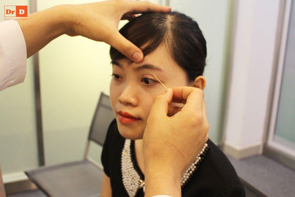 bac-si-dien-huong-dan-cach-tao-nep-mi-tai-nha-4 Bác sĩ Điền hướng dẫn cách tạo nếp mí tại nhà sau 2 phút