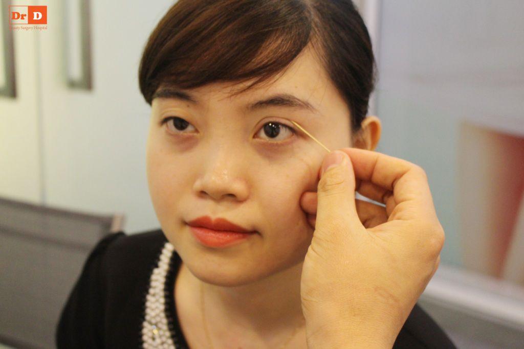 bac-si-dien-huong-dan-cach-tao-nep-mi-tai-nha-5 Bác sĩ Điền hướng dẫn cách tạo nếp mí tại nhà sau 2 phút