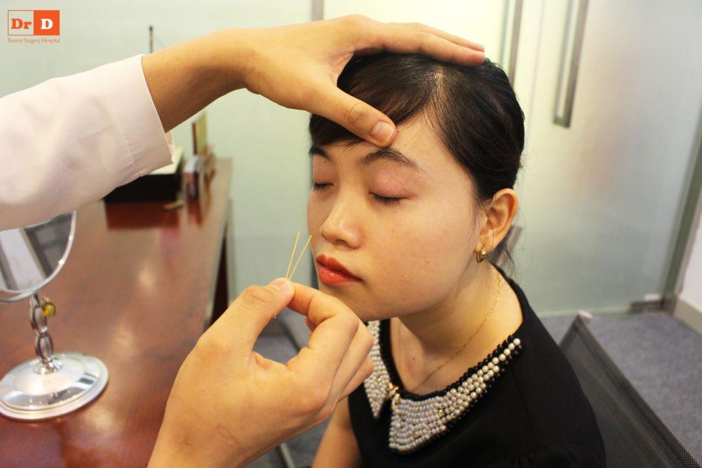 bac-si-dien-huong-dan-cach-tao-nep-mi-tai-nha-6 Bác sĩ Điền hướng dẫn cách tạo nếp mí tại nhà sau 2 phút