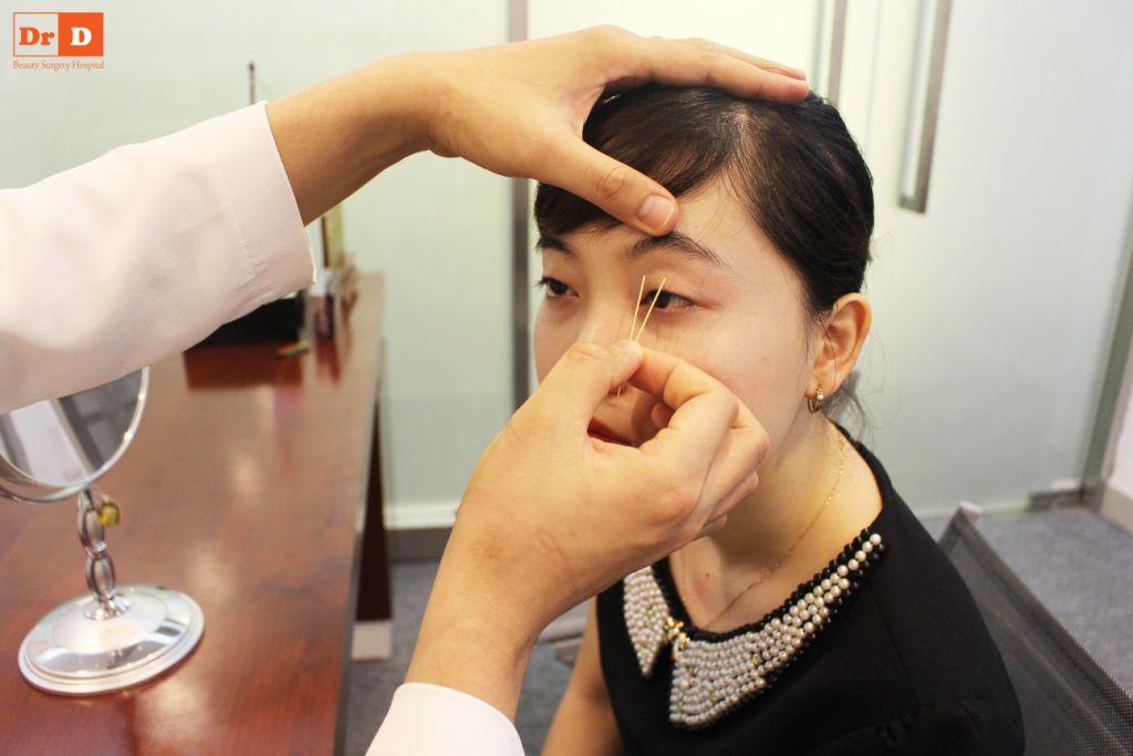 bac-si-dien-huong-dan-cach-tao-nep-mi-tai-nha-7 Bác sĩ Điền hướng dẫn cách tạo nếp mí tại nhà sau 2 phút