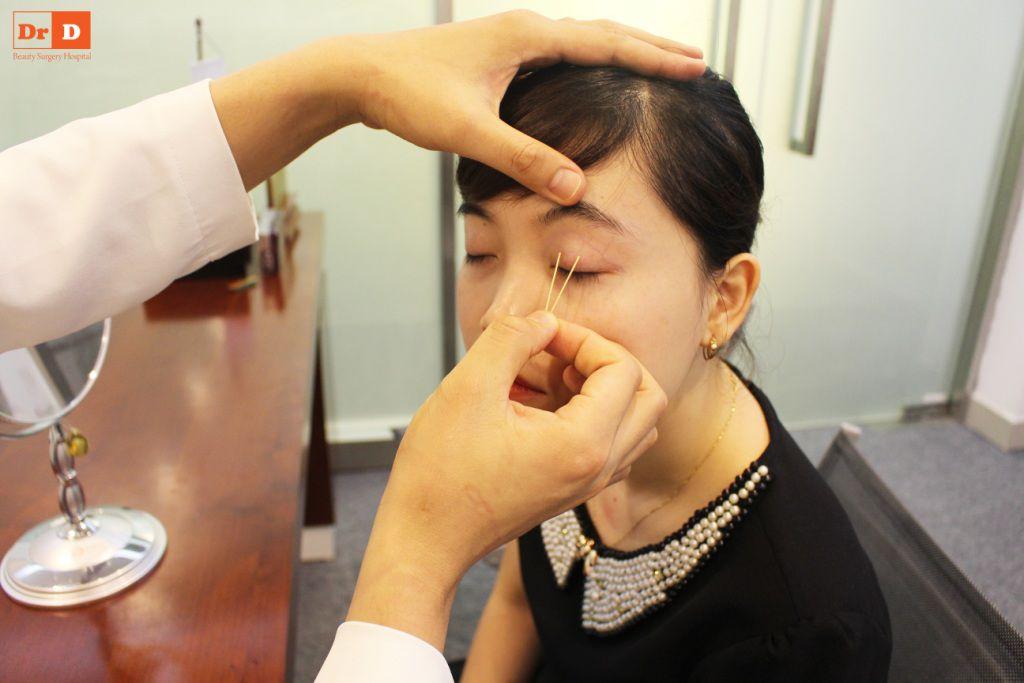 bac-si-dien-huong-dan-cach-tao-nep-mi-tai-nha-8 Bác sĩ Điền hướng dẫn cách tạo nếp mí tại nhà sau 2 phút