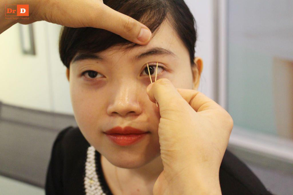 bac-si-dien-huong-dan-cach-tao-nep-mi-tai-nha-9 Bác sĩ Điền hướng dẫn cách tạo nếp mí tại nhà sau 2 phút