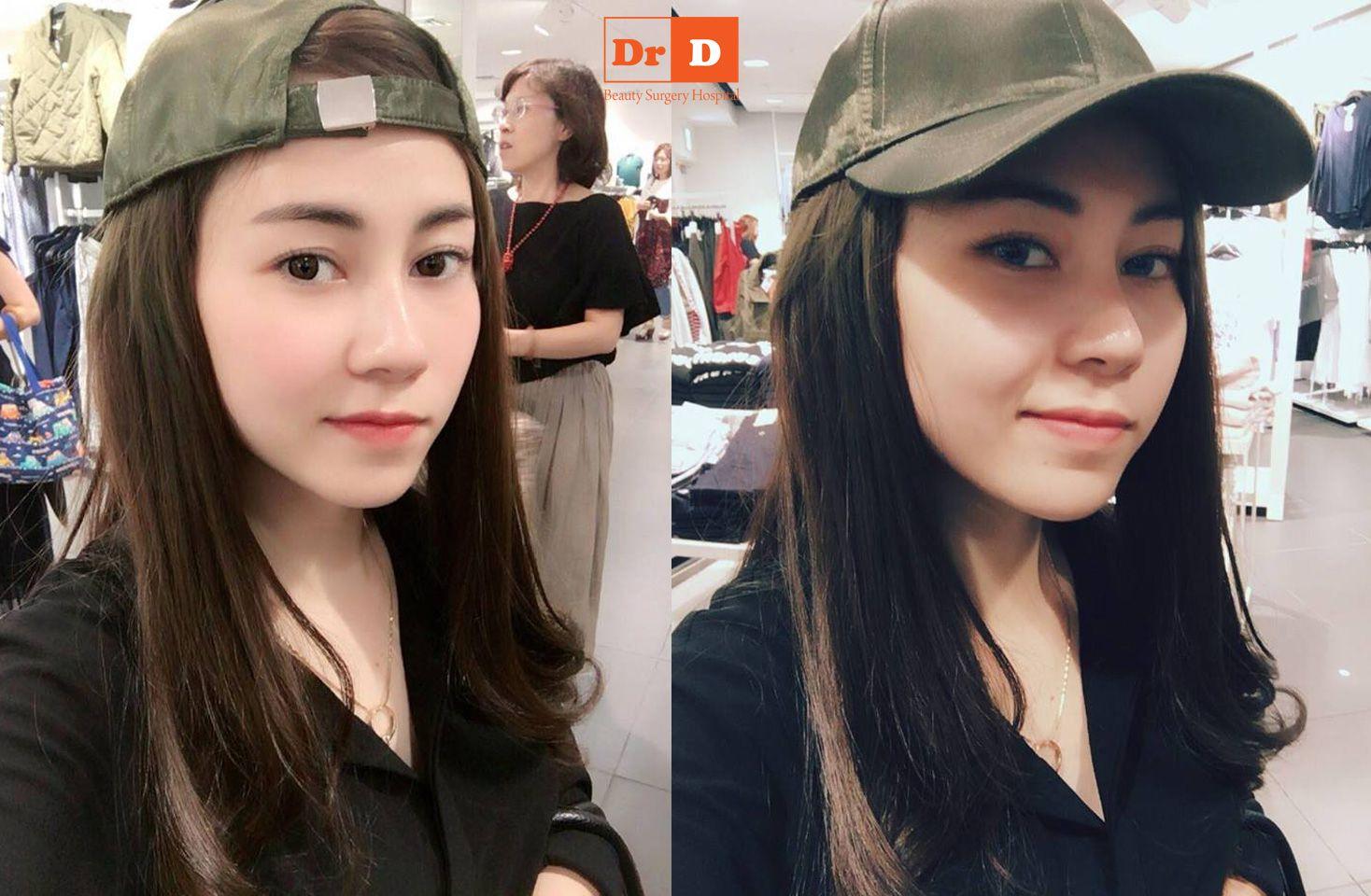 """luu-phuong-linh-lam-dep-chang-phai-de-tu-tin-hon-sao-2 Lưu Phương Linh: """"Làm đẹp chẳng phải để tự tin hơn sao"""""""
