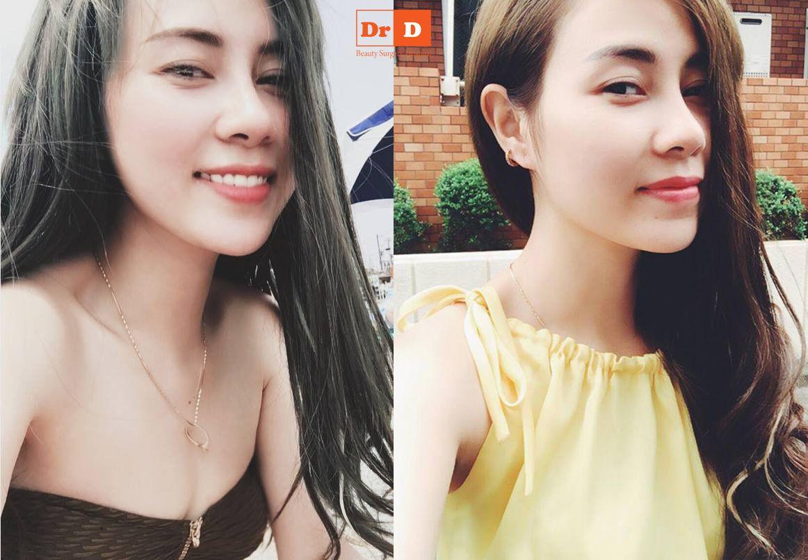 """luu-phuong-linh-lam-dep-chang-phai-de-tu-tin-hon-sao Lưu Phương Linh: """"Làm đẹp chẳng phải để tự tin hơn sao"""""""