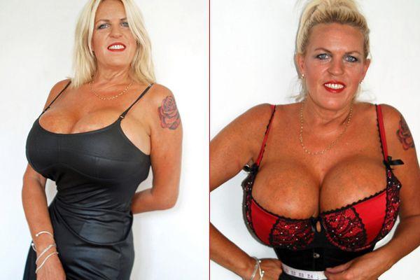 nang-nguc-khung-o-tuoi-50-cung-phan-bien-va-cung-giai-dap-2 Tuổi 50: Nâng ngực khủng - Thay đổi cuộc đời?