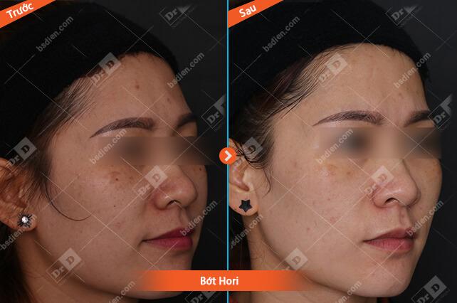 Nguyen-Thi-Hoa-bot-Hori Da liễu thẩm mỹ - CNC
