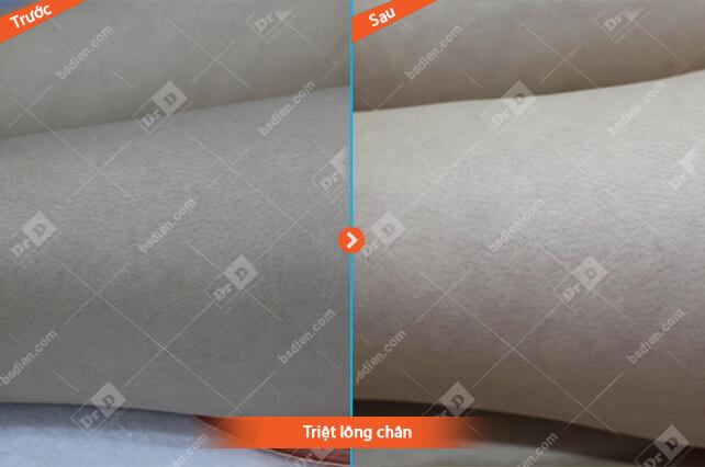 Nguyen-Thi-Thuy-Linh-triet-chan Da liễu thẩm mỹ - CNC