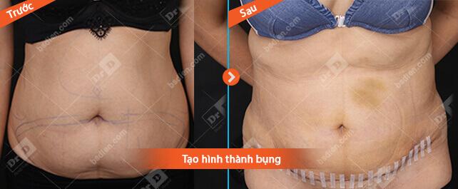 Nguyen-Thu-Ngan-tao-hinh-thanh-bung Hút mỡ - Tạo hình thành bụng