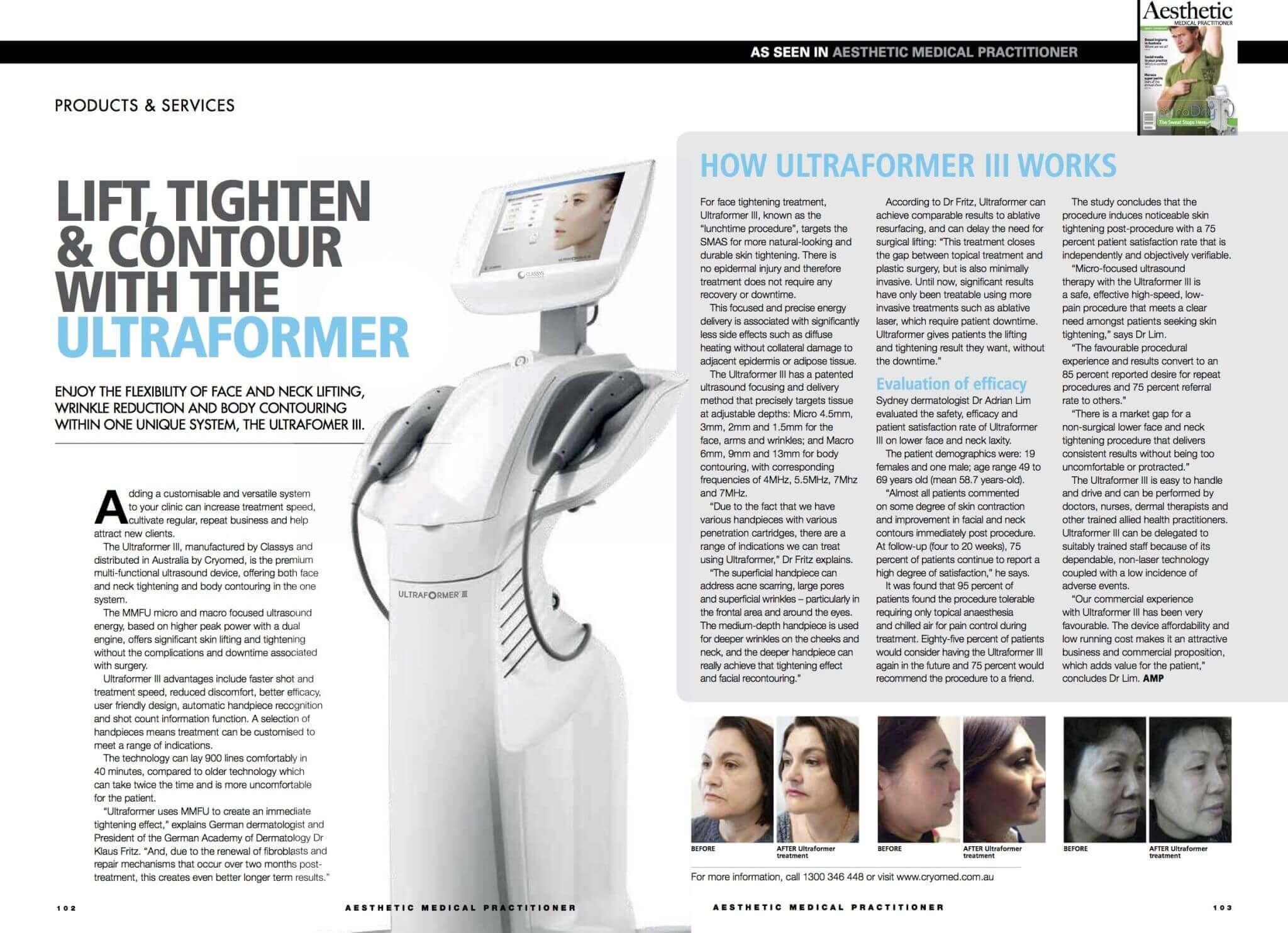 ultraformer 3 Công nghệ Nâng cơ – trẻ hóa – xóa nhăn UltraFormer III
