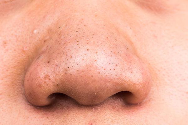 mun-mui-1 Đẩy mụn đầu đen ra khỏi da không cần mất công ấn nặn