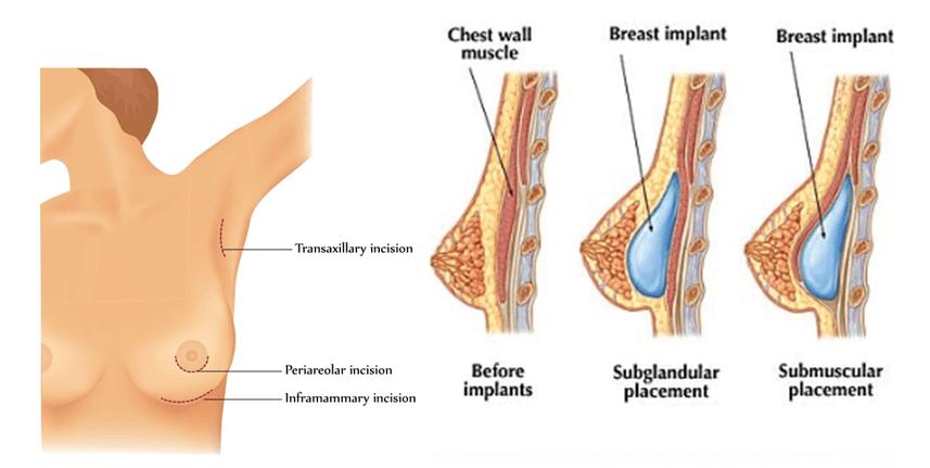giải đáp thắc mắc về phẫu thuật nâng ngực nội soi
