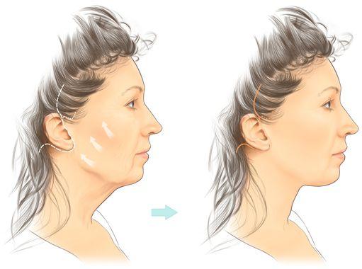 Bí quyết làm căng da mặt
