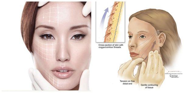 Cách căng da mặt