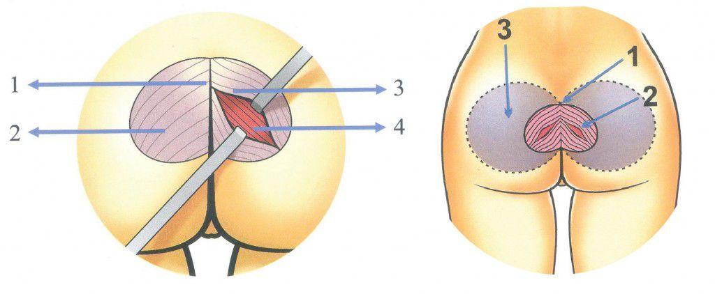 Độn mông nữ