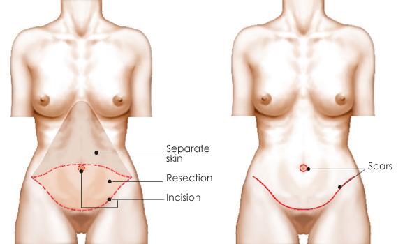 phẫu thuật căng da bụng có nguy hiểm không