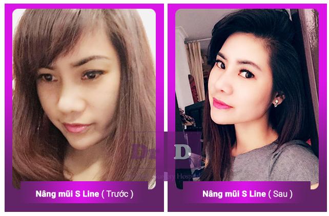 Nâng mũi S line bác sĩ Điền