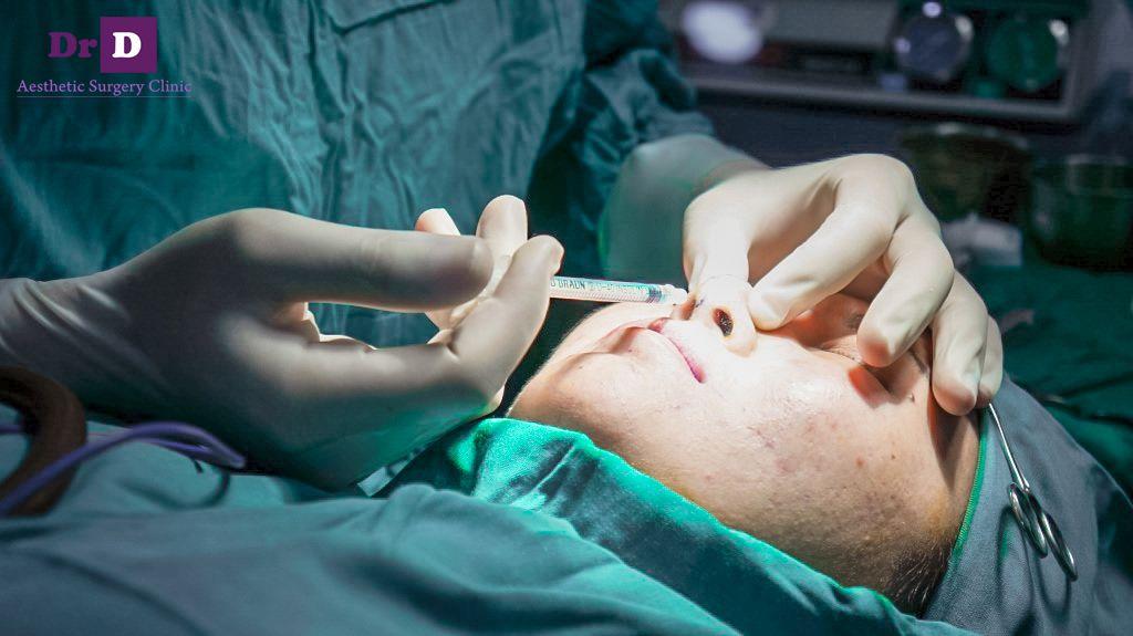 sửa mũi bác sĩ điền không đau không để lại sẹo