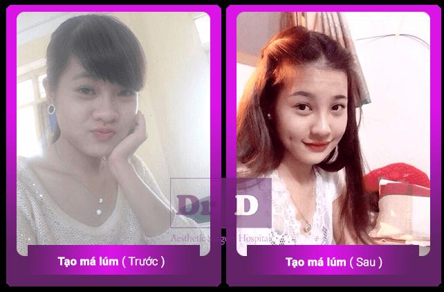 tang-toi-60-dich-vu-lam-dep-tai-vien-tham-my-bac-si-dien-trong-thang-8 (3)