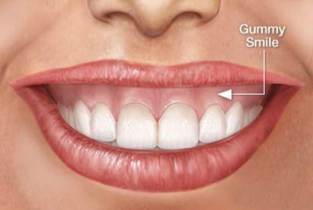 Phẫu thuật thẩm mỹ cười hở lợi do hàm hô