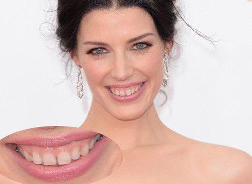 Chữa cười hở lợi ở đâu giúp bạn có nụ cười đẹp