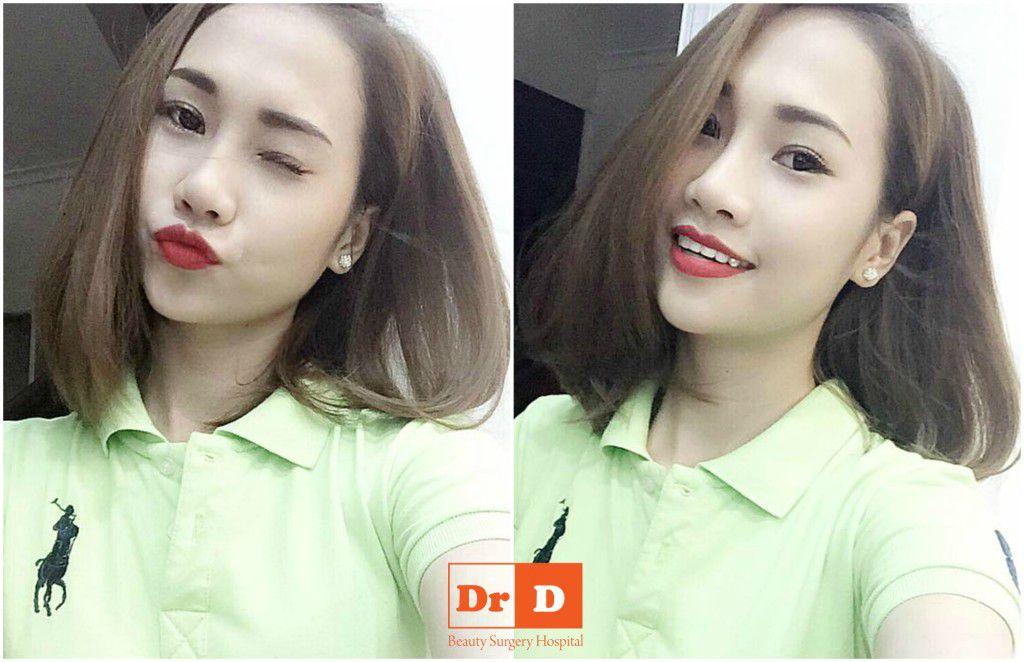 hanh-trinh-nang-mui-bam-mi-cua-co-chu-spa-xinh-dep (2)