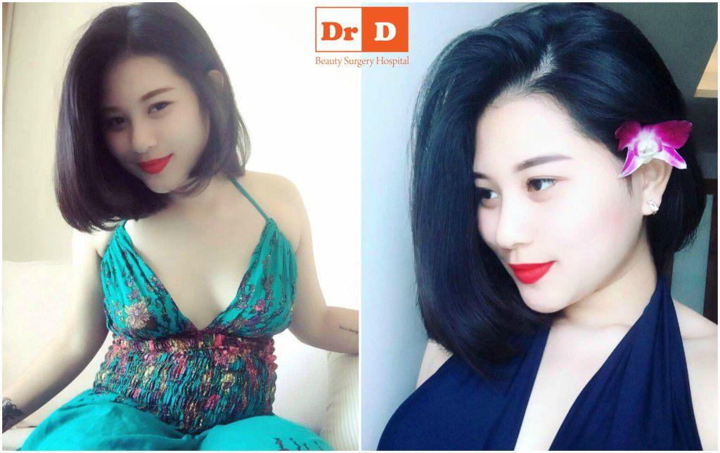 guong-mat-them-hoan-hao-sau-phau-thuat-don-cam (2)