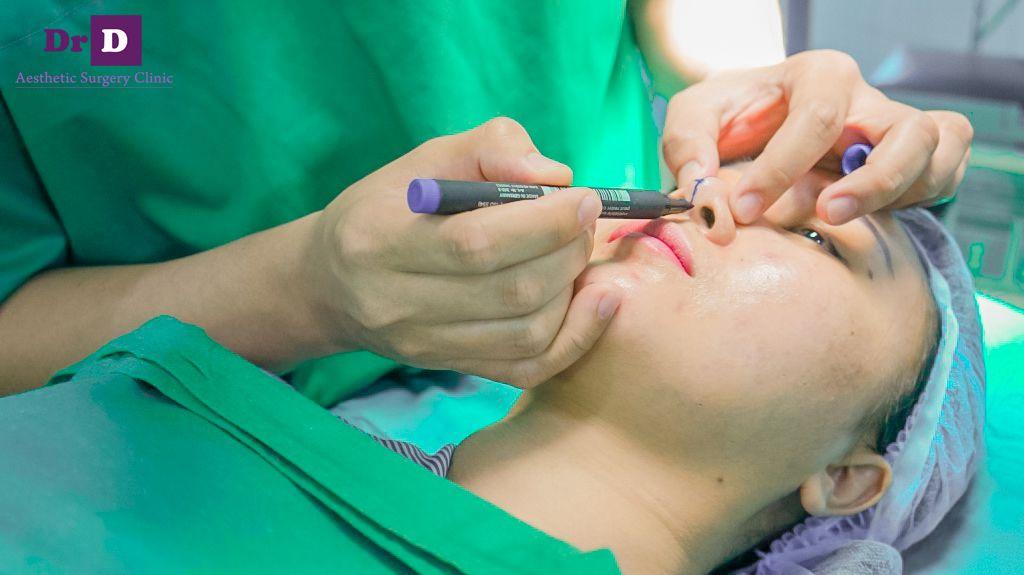 Viêm xoang có thể phẫu thuật nâng mũi không?