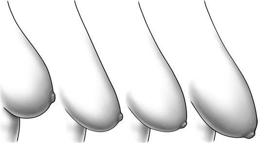 """3 nguyên nhân """"làm phẳng"""" ngực bạn"""