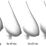 Cải thiện ngực chảy xệ căng tròn như tuổi đôi mươi