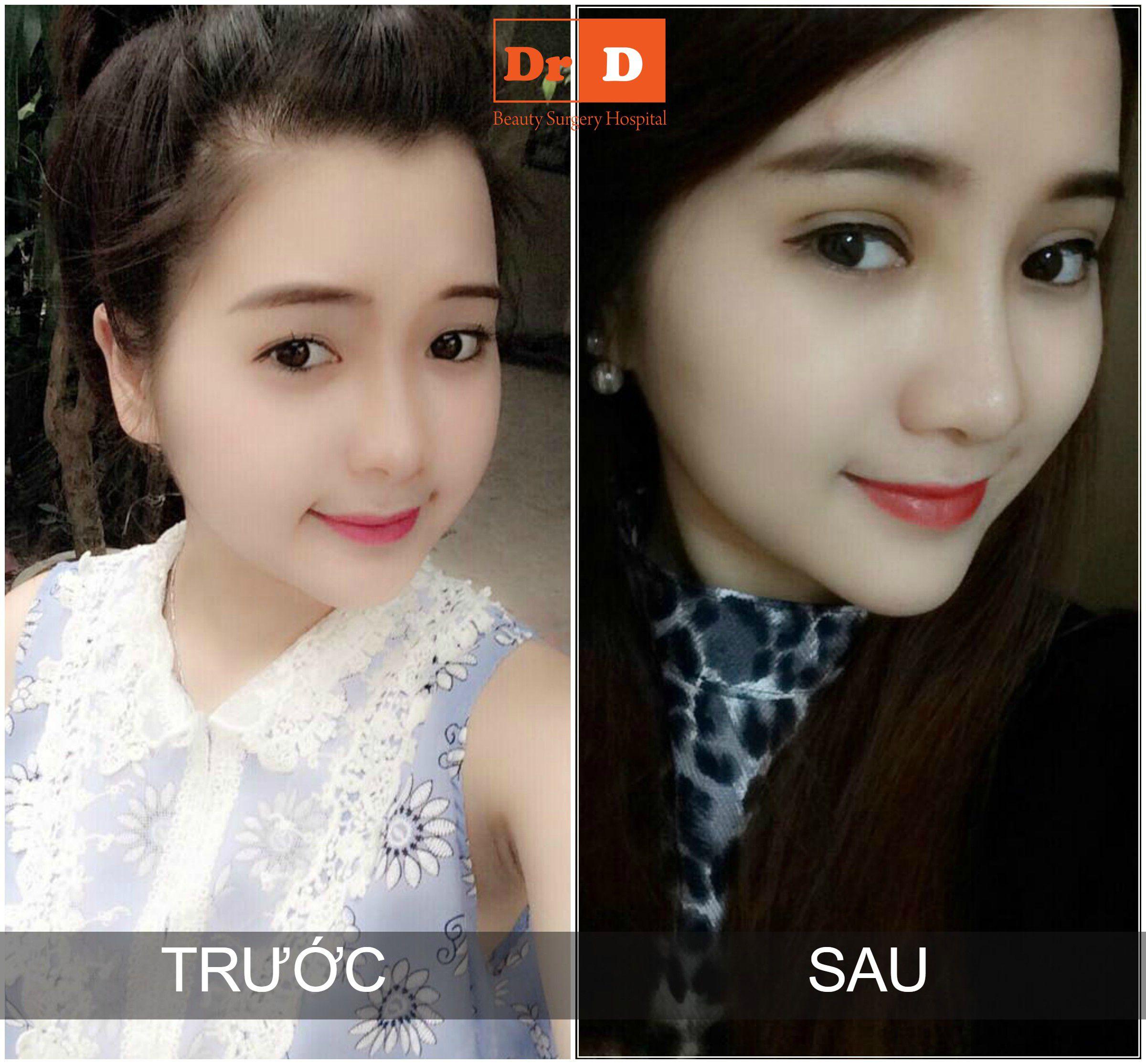 phuong-tron-ve-dep-hoan-hao-den-tu-su-hai-hoa-11