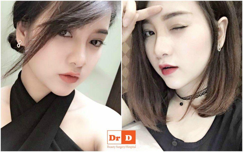phuong-tron-ve-dep-hoan-hao-den-tu-su-hai-hoa (3)